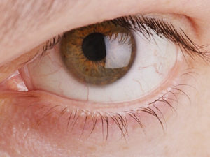 Проблема бородавки на глазу
