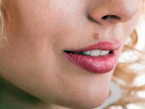 Проблема бородавок на лице