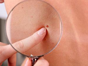 Проблема бородавок на теле