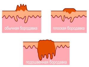 Разновидности бородавок