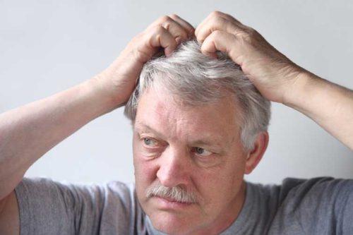 базалиома кожи головы