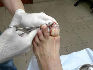 Лечение меланомы ногтя
