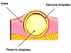 Схема строения атеромы
