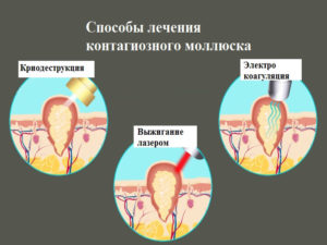 Способы лечения контагиозного моллюска