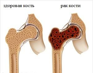 меланома костей
